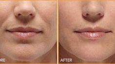 Yoga face workouts can erase mouth wrinkles and trim smile folds very effectively. Utilizing face toning exercises to decrease laughter wri. Skin Care Regimen, Skin Care Tips, Bio Cosmetics, Personal Beauty Routine, Wrinkle Remedies, Magical Makeup, Wrinkle Remover, Beauty Recipe, Belleza Natural