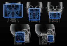 CBCT Scan in Delhi - Paradise Diagnostics - Oral Radiology & Pathology Center in Delhi offers 2D & 3D Dental Imaging and Maxillofacial Pathology –CBCT Scan, OPG X Ray, Cephalogram & Analysis  https://dochub.com/indiareviews/22oq5O/cbct-scan-in-delhi-paradise-diagnostics