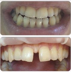 Şans getirir derler de getirmese de olur:) Kompozit dolgu ( beyaz dolgu ya da 'bonding' diye biliniyor:)) ile aralığın kapatılması. Herkese iyi haftalar ..#adhesivedentistry #restorativedentistry #diestema #dentistry #estheticdentistry by drgokcesaruhan Our General Dentistry Page: http://www.myimagedental.com/services/general-dentistry/ Google My Business: https://plus.google.com/ImageDentalStockton/about Our Yelp Page: bit.ly/1KZUPer Our Facebook Page: https://www.facebook.com/MyImageDental…