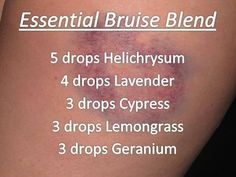Apply 2-3 times per day Helps to stop the pain and ease coloration of skin. To order essential oils visit www.mydoterra.com/dreamsofjeanne If you would like a 25% discount or to find a free class to learn more: dreamsofjeanne.webs.com