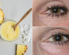 Under eye wrinkles are probably the first thing we see when we started worrying about our age. As we age, our skin loses elasticity and its ability to Under Eye Mask, Under Eye Wrinkles, Prevent Wrinkles, Alcohol Free Toner, Acne Scar Removal, Organic Makeup, Beauty Recipe, Perfect Skin, Skin Cream