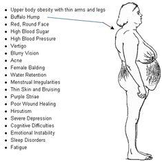 Buffalo Hump On Neck Cushings Adrenal Fatigue Symptoms, Adrenal Glands, Chronic Fatigue, Pituitary Gland, Cushing Disease, Cushing Symptoms, Buffalo Hump, Thyroid Disease, Illness Disease