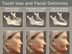 Dental Implants We have the right solution to your denture problems. Our dental implants provide long lasting results and serve as a reliable replacement for your missing teeth. Dental World, Dental Life, Dental Health, Oral Health, Dental Hygiene School, Dental Humor, Dental Assistant, Dental Hygienist, Oral Hygiene
