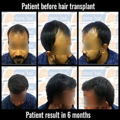 Advanced FUE hair transplant in pune with affordable hair transplant cost at la densitae hair transplant center in pune Hair Transplant Cost, Hair Transplant Surgery, Hair Clinic, Hair Restoration, Hair Loss Treatment, Pune, Fall Hair, Confidence