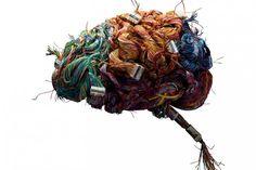 Psychische ziekten te zien in brein | Wetenschap in Beeld