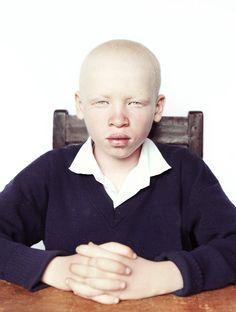 The beauty of albino child