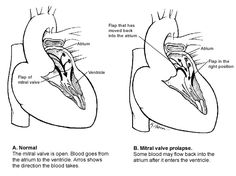 Does Mitral Valve Prolapse Cause Panic Attacks - Hyperventilation  Improve your health by reading this trendy article.