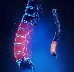 Комлекс «Крокодил» от австралийских остеопатов для здоровья позвоночника