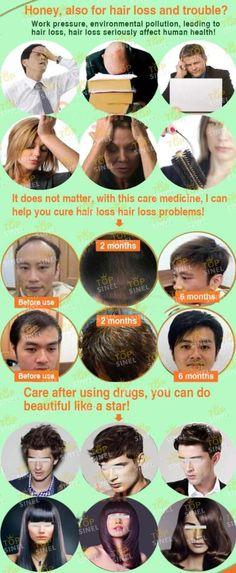 FAZIYUAN Ginger Professional e condicionador shampoo para a perda de cabelo, Aussie milagre para wemen e homem crescimento do cabelo ...