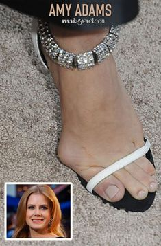 The Ugliest celebrity feet in Hollywood including nasty Corns , painful bunions, fungal nail infections. Stars with ugly feet Foot Pics, Foot Pictures, Shadow Pictures, Foot Pedicure, Pedicure Ideas, Duck Feet Nails, Actress Feet, Hammer Toe, Walking In Heels