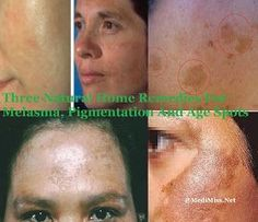MediMiss: Three Natural Home Remedies For Melasma, Pigmentation And Age Spots Beauty Tips For Face, Best Beauty Tips, Health And Beauty Tips, Beauty Skin, Beauty Secrets, Age Spot Remedies, Natural Home Remedies, Age Spots On Face, Health Tips