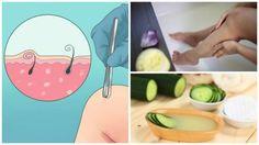 Mantar çoğunlukla ayak tırnaklarınızda olur ancak el tırnaklarınızda da çıkabilir. Tedavi edilmesi, göze hoş görünmemesinin yanısıra, sağlık açısından da önemlidir. Sarımsı, yeşil veya kahverengi tırnaklarınız varsa, mantar için hazırlanan ev yapımı ilaçlara mutlaka bir göz atın.