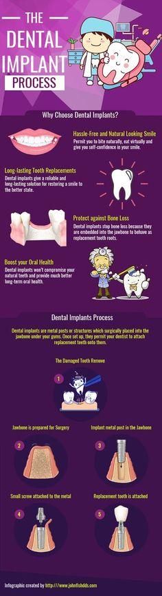 New Screen dental implants procedure Ideas While written in context as the Academy involving Common The field of dentistry, an oral implant will be an a Dental Implant Procedure, Teeth Implants, Dental Implants, Oral Health, Dental Health, Zoom Teeth Whitening, Preparing For Surgery, Tooth Replacement, Dentist In