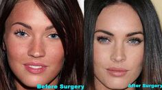 plastic women | If you ask me.. she looked better before she had plastic surgery.
