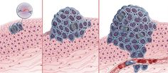 Cancer Genomics: Head and Neck Cancer