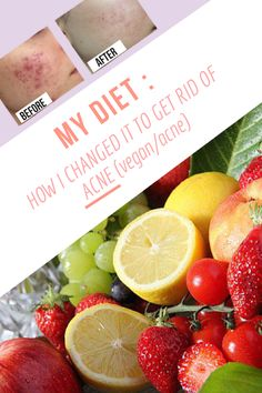 MY DIET : HOW I CHANGED IT TO GET RID OF ACNE (vegan/acne)