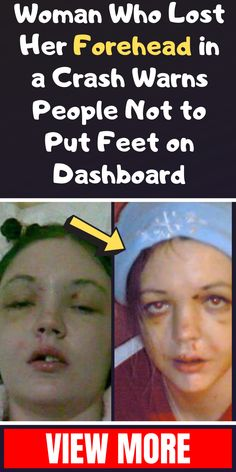Woman Who Lost Her Forehead in a Crash Warns People Not to Put Feet on Dashboard December Holidays, Winter Holidays, Dashboard Interface, Data, Planner, Losing Her, Amazing Things, Mother Nature, Korean Fashion