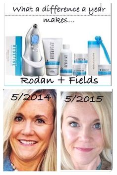 Rodan and Fields Redefine Regimen: 1 YR results Before and After. It's time to take control of your skin--contact me! Kimberlylacapra.myrandf.com