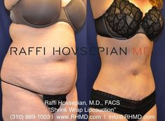 Shrink Wrap Liposuction Before And After - Diet Plan Before And After Liposuction, Beverly Hills Plastic Surgery, Tummy Tuck Before After, Fat Transfer, Mommy Makeover, Tummy Tucks, Shrink Wrap, Body Contouring, Transformation Body