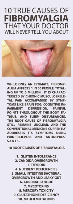 10 true causes of fibromyalgia that your doctor will never tell you about Along with this list, a herpetic infection of the vagal nerve triggers microglial cells in the brain to cause horrid fibro symptoms. Dr Pridgen of the Pridgen Protocol did FDA Phase 2 study- sees pts in Tuscaloosa AL Does protocol of Famvir & Celebrex. I traveled to see him. Felt amazingly good!