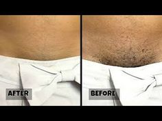 STOP SHAVING!! THIS IS HOW YOU SHOULD REMOVE PUBIC HAIR WITHOUT SHAVING OR WAXING - YouTube