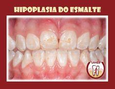 Hipoplasia do Esmalte  A Hipoplasia do Esmalte pode ser definida como a formação incompleta ou defeituosa da matriz orgânica do esmalte dental. Pode afetar tanto a dentição decidua como a permanente. Essa anomalia de esmalte pode estar associada a condições tais como: - Em crianças nascidas prematuras; - Trauma ao nascimento; - Complicações durante e logo após o parto; - Infecção ou traumatismos locais; - Deficiência de vitaminas A C e D. Além de cálcio e fósforo. Clinicamente as alterações…