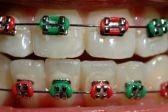 Teenager with braces of festive Christmas color Cute Braces Colors, Teeth Images, Getting Braces, Dental Procedures, Complimentary Colors, Orthodontics, Beautiful Smile, Christmas Colors, Dentistry