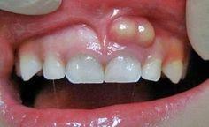 Treat tooth abscess with apple cider vinegar and clove oil Tooth Abcess Remedy, Hair Clip Organizer, Family Dental Care, Root Canal Treatment, Clove Oil, Teeth Care, Dental Implants, Dental Health, Men Health