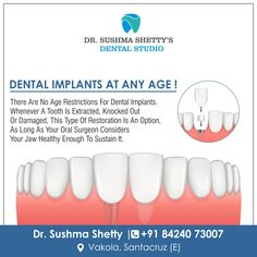 Yes you Read it Right ! Dental Implants Does not Have Any Age Restrictions Depending Upon the Orthodontic Conditions. Consult us at Dr Sushma Shetty's Dental Studio For Appointment : 84240 73007 Vakola, Santacruz Dental Surgeon, Dental Implants, Best Dentist, Orthodontics, Dental Care, Facebook Sign Up, Dentistry, Teeth, Healthy