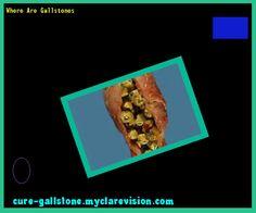 Where Are Gallstones 154407 - Cure Gallstone