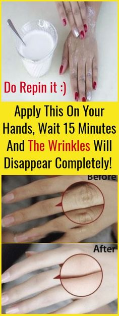 Apply This In Your Hands, Wait 15 Minutes And The Wrinkles Will Disappear Completely!