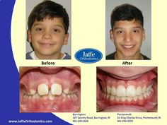 Nicholas Orthodontics, Portsmouth, King Charles, Photos, Pictures, Cake Smash Pictures