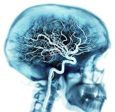 Vasos sanguíneos del cerebro mediante Rayos X coloreados