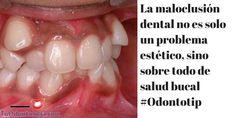 La maloclusión dental no es solo un problema estético, sino de salud bucal #Odontotip