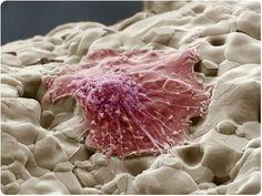 A Bone Marrow Stem Cell