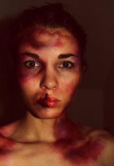 Bruises, Stage makeup, acting, actors, theatre, drama, cosplay, cosplay makeup, Halloween, beat up, gore ~ Completed with entirely drugstore makeup only