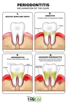 Note: Do consult a dentist for proper diagnosis and treatment of this condition. Use home remedies just as an adjunct treatment. Periodontitis, formerly known as pyorrhea, is an advanced stage of gum disease in which the gums and bones that provide suppor Gum Health, Teeth Health, Healthy Teeth, Dental Health, Dental Care, Oral Health, Healthy Toothpaste, Gum Disease Treatment, Rock