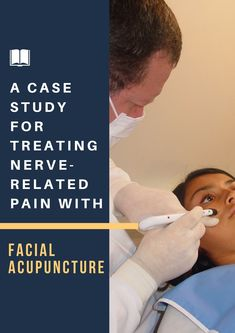 Here's how to facial acupuncture for nerve-related pain conditions such as TMJ.  #Acupuncturetip #AcupunctureWorks #Acupuncturebenefits #tcm #traditionalchinesemedicine Trigeminal Neuropathy, Facial Nerve, Acupuncture Benefits, Peripheral Nerve, Randomized Controlled Trial, Traditional Chinese Medicine, Nerve Pain, Light Therapy, Acupressure