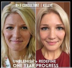 Rodan and Fields Unblemish and Redefine for your best skin!