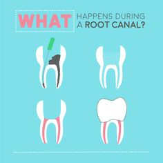 THE STEPS OF A ROOT CANAL are easy to understand! Remove infected material, clean, fill, and seal!