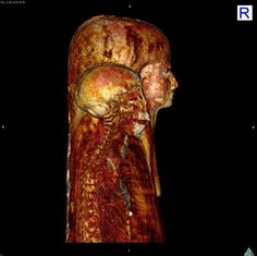 Inside look: A mummy from British Museum after being scanned at Manchester Royal Infirmar