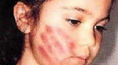 وفاة طفلة عمرها 4 سنوات عذبتها أمها وحرمتها من الأكل.. إلى أن التصق جلدها بالعظم