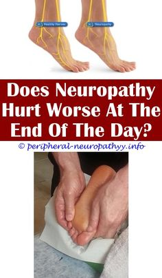 Anterior optic neuropathy fundoscopy.Earliest sign of diabetic neuropathy.Neuropathy relief natural - Peripheral Neuropathy. 9616550887 #PeripheralNeuropathy