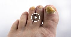 Этот метод очень прост и эффективен, просто следуйте инструкции! Грибок на ступняхи ногтях обычно является результатом влаги, бактерий и часто они неприятны и болезненны. Белые или желтые пятна на вершине ногтя обычно являются первым этапом проявления заражения ногтей, называемым грибком. Со временем они могут менять его цвет и форму и ногтимогут стать очень непривлекательнымии болезненными. …
