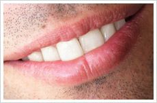 Teeth whitening can be a highly effective yet very simple way of lightening the colour of teeth without harming them.
