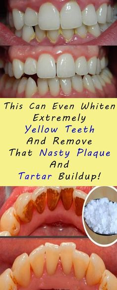 This Can Even Whiten Extremely Yellow Teeth And Remove That Nasty Plaque And Tartar Buildup! #health #teeth #fitness #beauty #diy #plaquetartarremoval