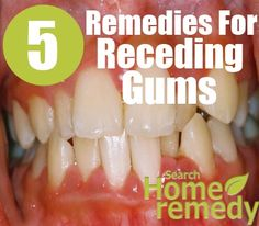 how to get rid of gum disease fast at home