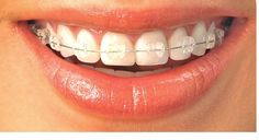 Our office specializes in the prevention and correction of misaligned teeth and jaws as well as treatment of TMJ disorder.We also offer the latest advancements in orthodontics technology such as invisible ceramic braces