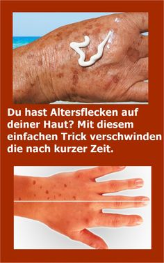 You have age spots on your skin? With this simple . Mit diesem einfachen Trick verschwinden d… You have age spots on your skin? With this simple trick they disappear after a short time. Oil For Hair Loss, The Face, Prevent Hair Loss, Hair Loss Treatment, How To Apply Makeup, Wellness Tips, Healthy Skin, Healthy Beauty, Whitening