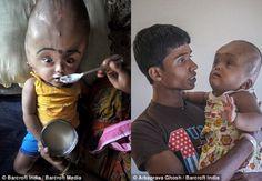 Após realizar cirurgia para reduzir cabeça de 97 cm, menina indiana sorri pela primeira vez | Portal PcD On-Line